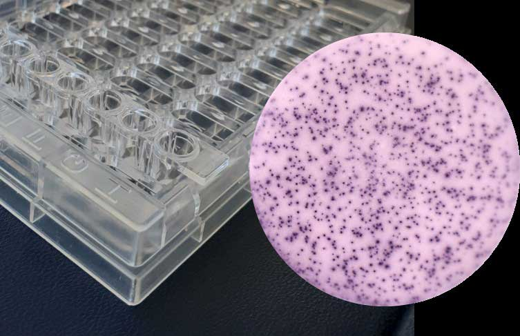 Diagnose der latenten Tuberkulose – Quantiferon oder T-Spot?